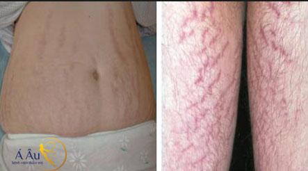 Rạn da sau sinh hiện nay đã điều trị rất tốt tại bệnh viện Á Âu