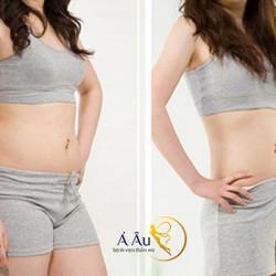Trước và sau căng da bụng sau sinh