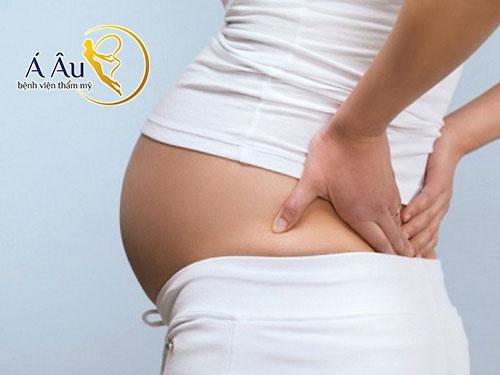 Căng da ở bụng bầu