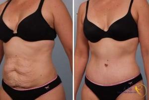 Khách hàng trước và sau khi thực hiện căng da bụng không phẫu thuật